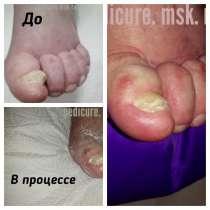 Педикюр для Пожилых Людей и Людей с проблемными ногами, в Москве